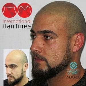 Scalp micropigmentation for men in florida