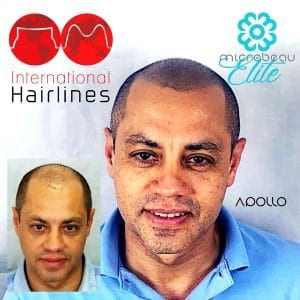 Very happy hair pigmentation client