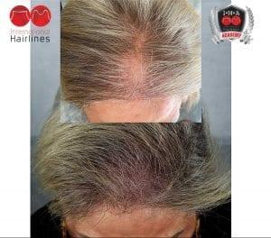 Scalp micropigmentation treatment for women