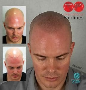 Scalp micropigmentation work