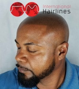 Our scalp micropigmentation client