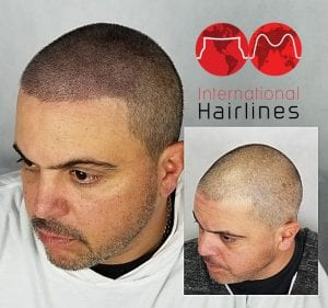 Scalp micropigmentation for men in south florida