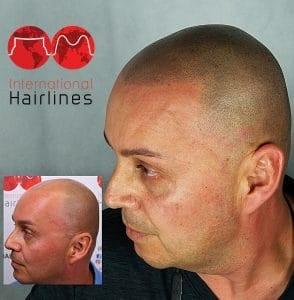 Scalp micropigmentation for men in south florida