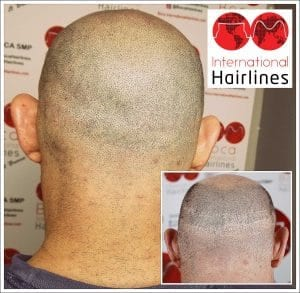 Remove scalp scars with smp in south florida