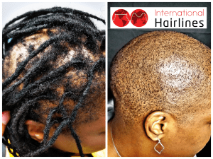 SMP for women with dreadlocks