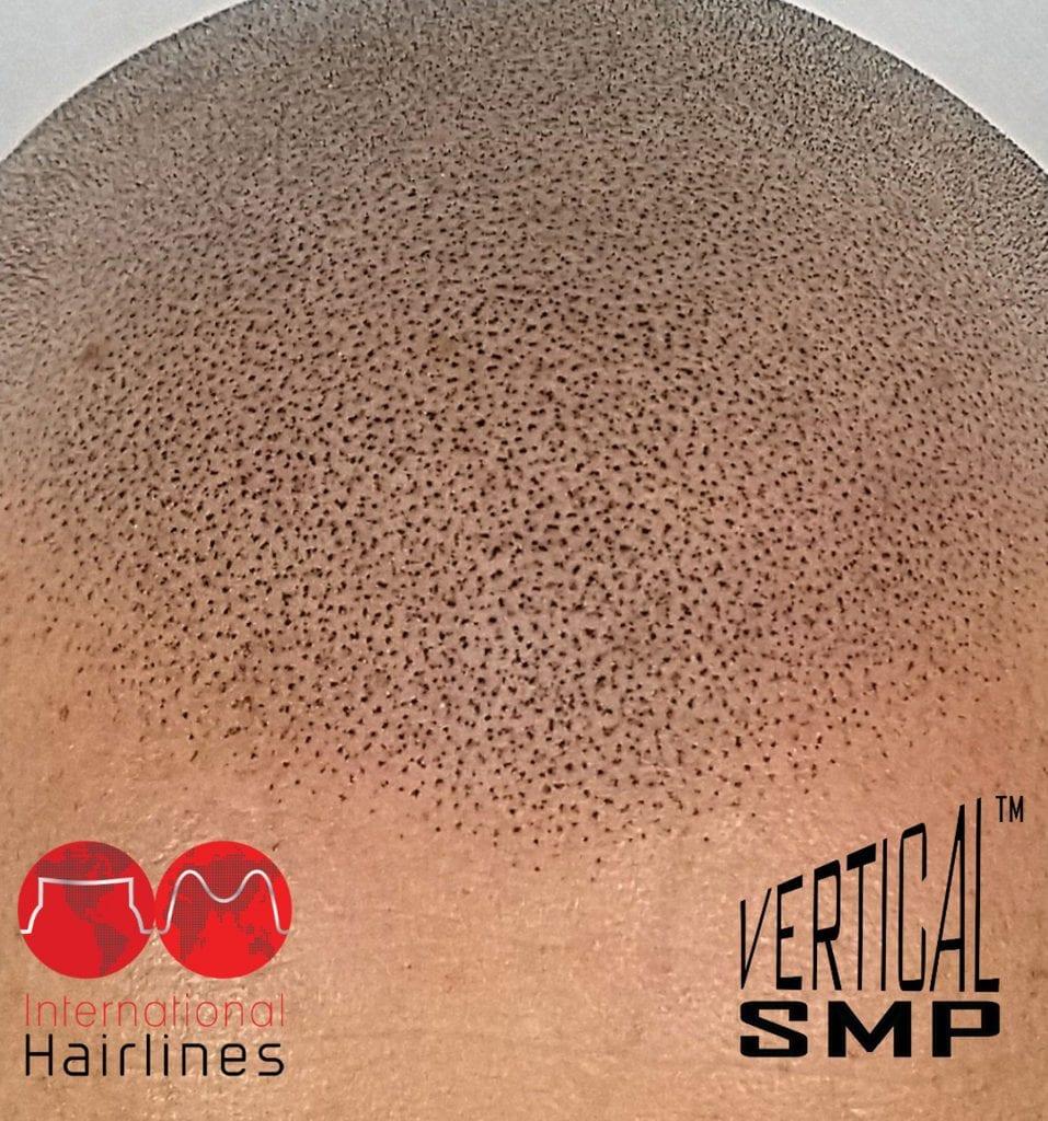 Our vertical scalp micropigmentation work