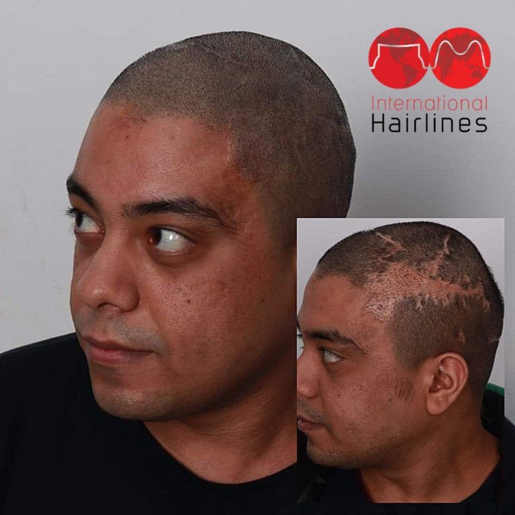 Micro scalp pigmentation work
