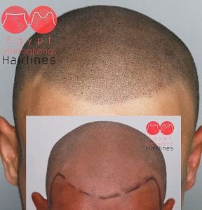 Scalp micropigmentation center