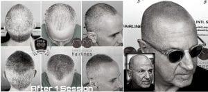 Scalp Micropigmentation for Grey Hair