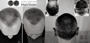 SMP - A Alternative to Hair Transplant