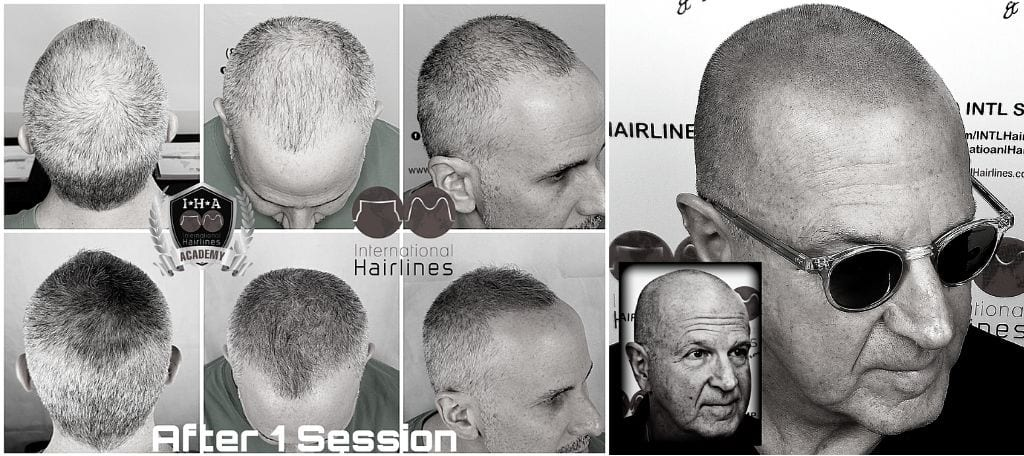 Scalp Micropigmentation for Grey Hair