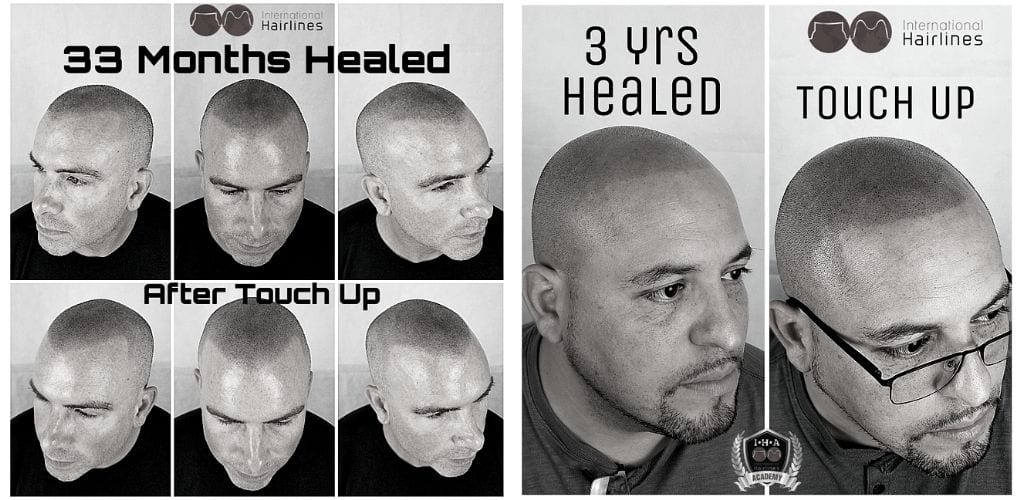 Scalp Micropigmentation Touch-Ups