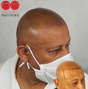 Miramar FL Scalp Micropigmentation
