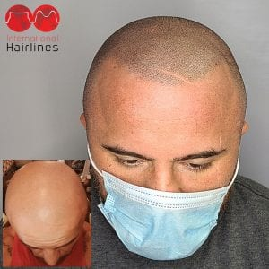 Miami Lakes Scalp Micropigmentation