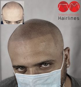 scalp micropigmentation in florida