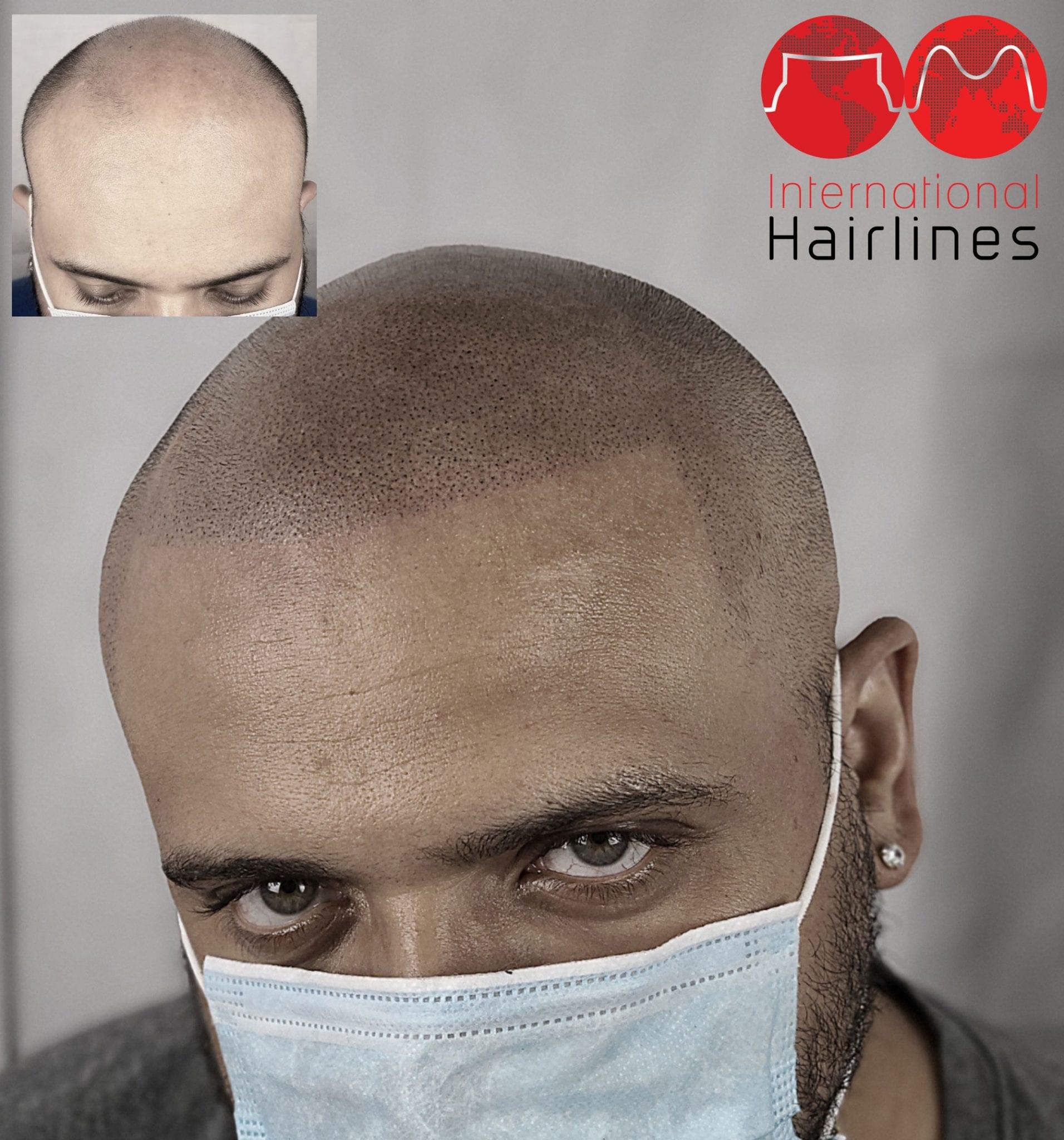 scalp micropigmentation in florida