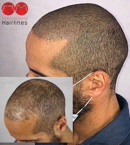 Baldness treatment with scalp micropigmentation