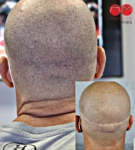 smp scar concealment procedure to cover hair transplantation scarring