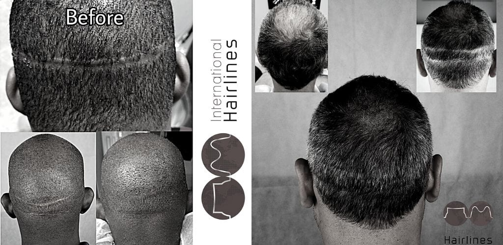 How to Cover Hair Transplant Scars with SMP