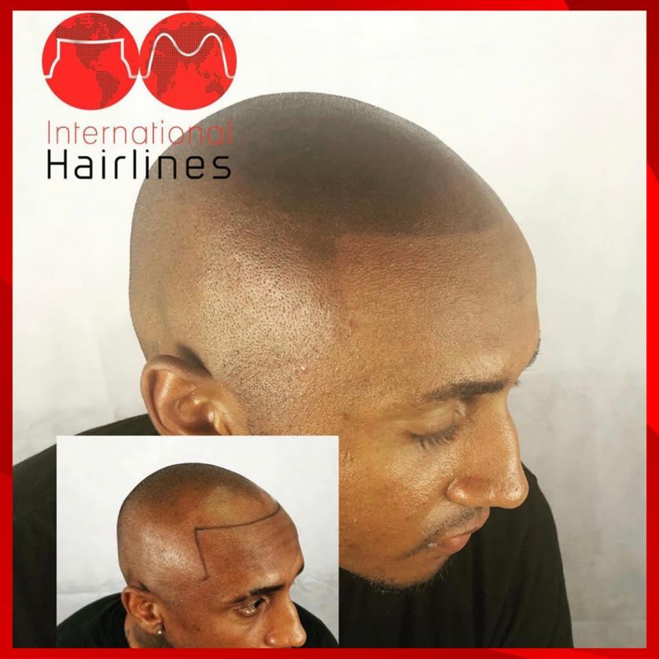 Scalp Hairline Tattoo Kendall FL
