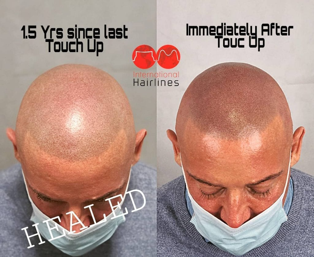 Scalp micropigmentation touch up