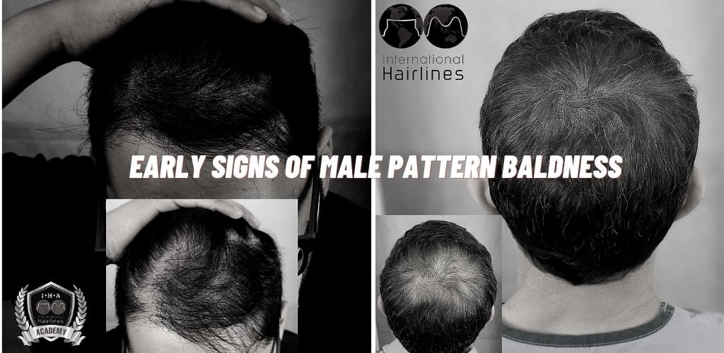 Early Signs of Male Pattern Baldness